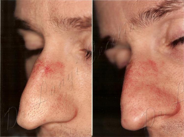 Egyre több embernél fordul elő hámsejtekből kiinduló bőrrák