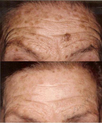 hogyan lehet eltávolítani a vörös öregségi foltokat az arcon