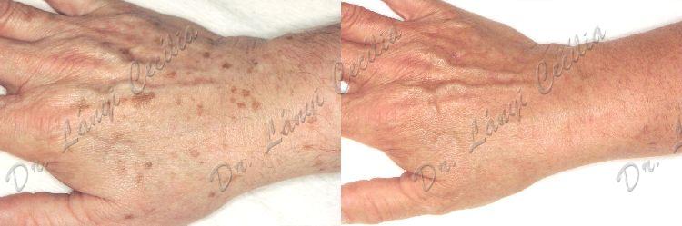 Öregségi foltok visszér. Hiperpigmentáció